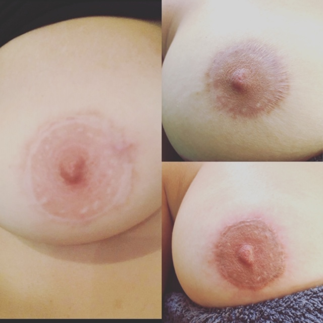 areola scar reconstruction before after