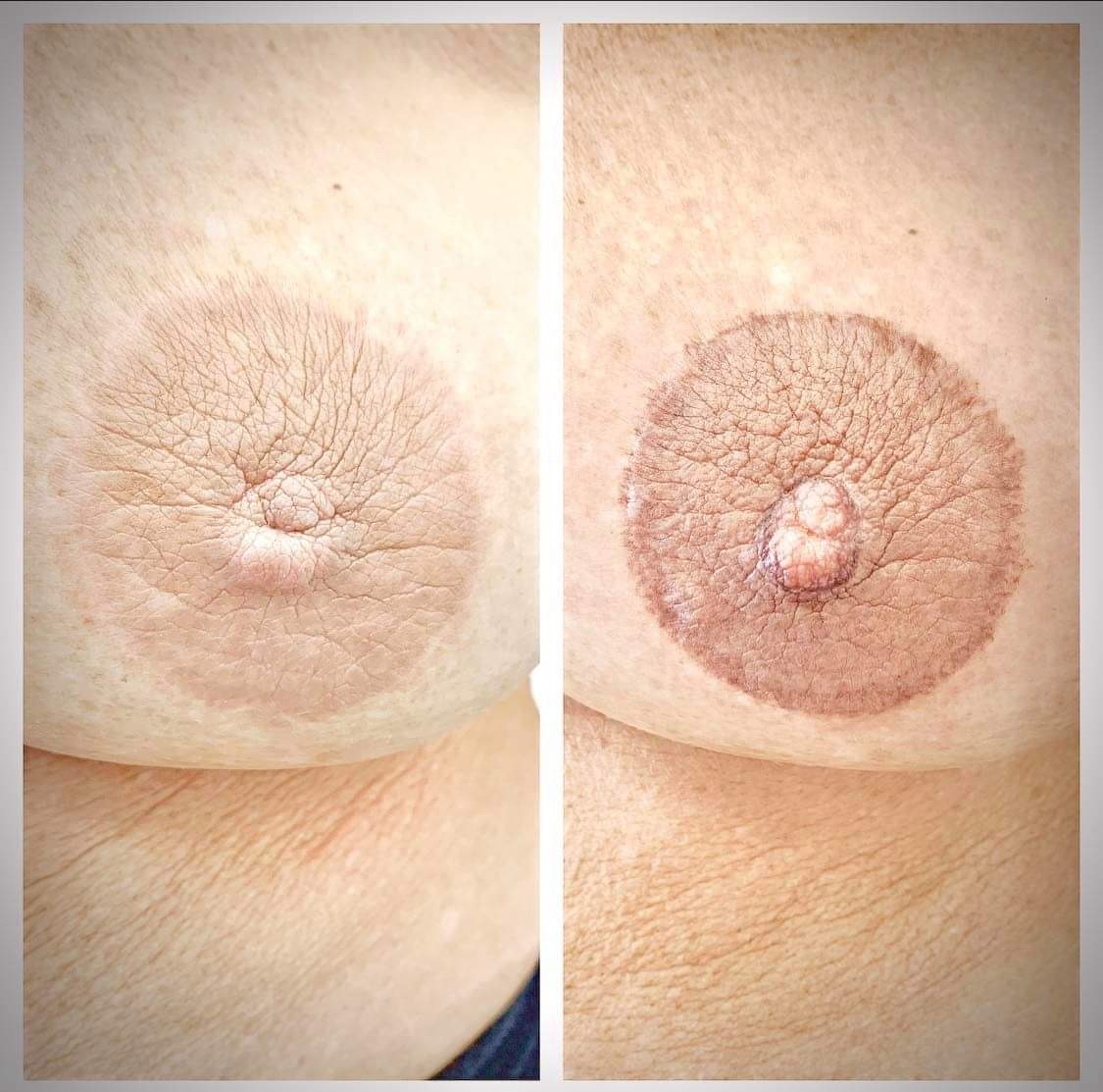 areola pigmentation London
