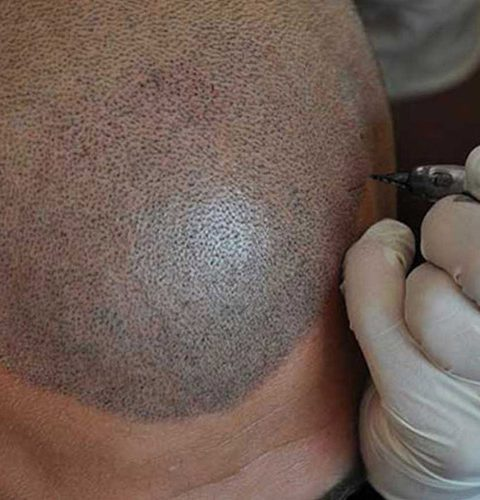 smp scalp tattoo london