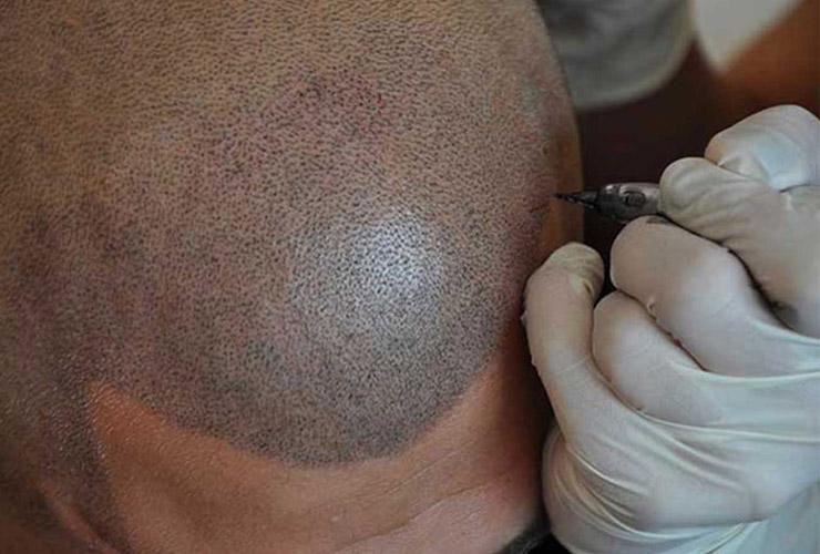 smp scalp tattoo london