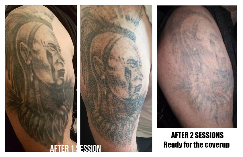 https://www.ink-illusion.com/wp-content/uploads/2018/06/paul-after-3-sessions.jpg