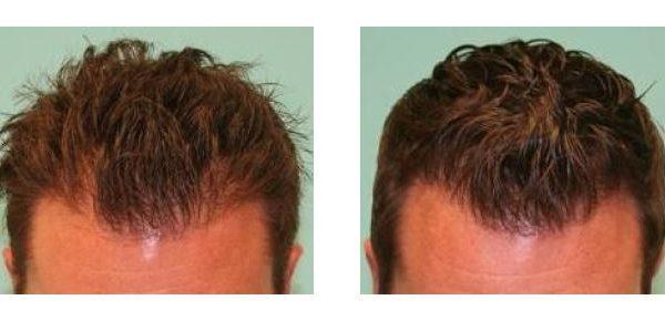 Men hair loss hairline density tattoo treatment hatfield SMP