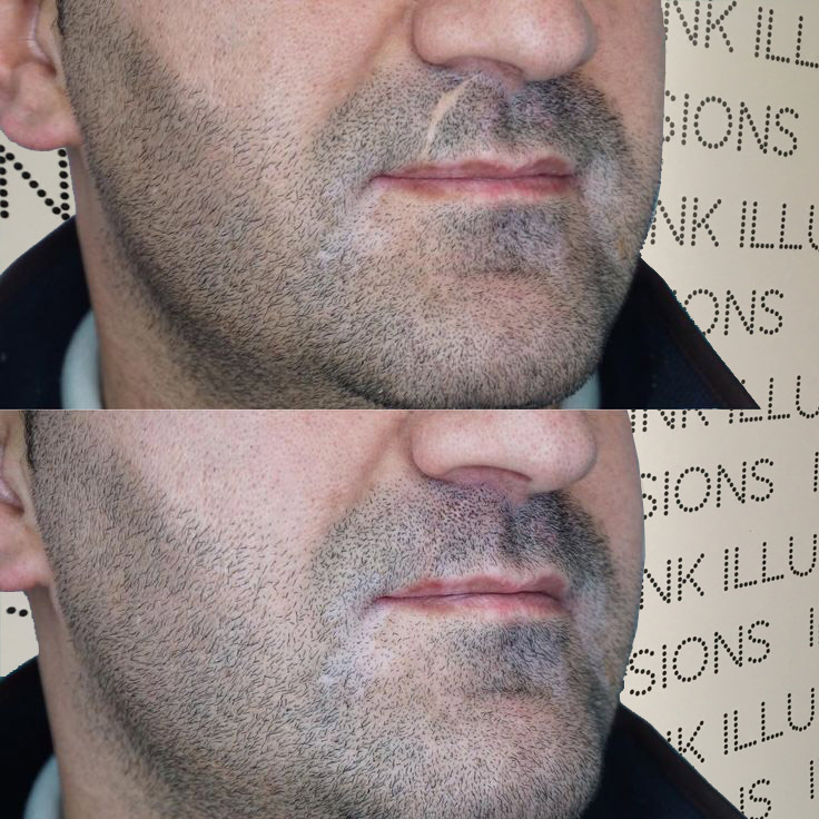 Beard scar camouflage tattoo