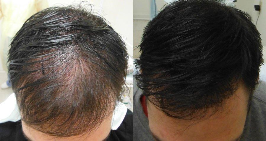 Men hair loss density tattoo treatment hatfield