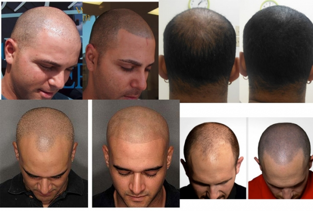 Men hair loss scalp tattoo treatment hatfield cheshunt