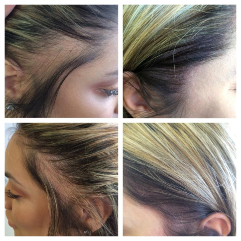 Female Hair loss on parting tattoo camouflage