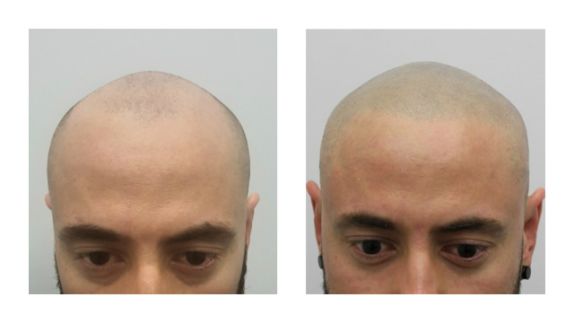 scalp micropigmentation before after SMP hertfordshire