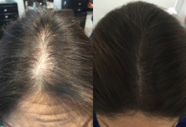 Hair loss on parting tattoo camouflage