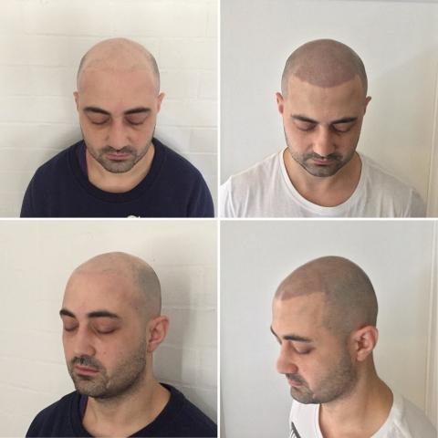 Scalp micropigmentation hair loss solution SMP cheshunt