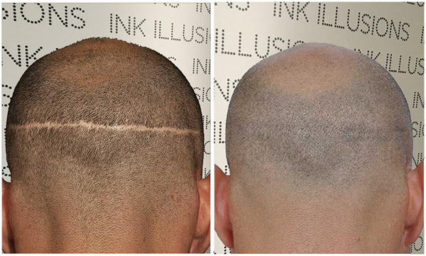 head scalp scar camouflage before after