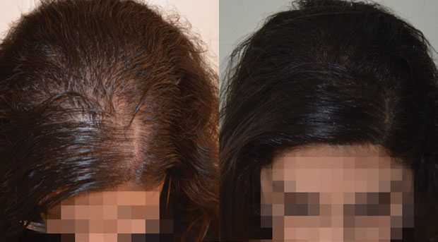 Female Hair loss on parting tattoo camouflage SMP
