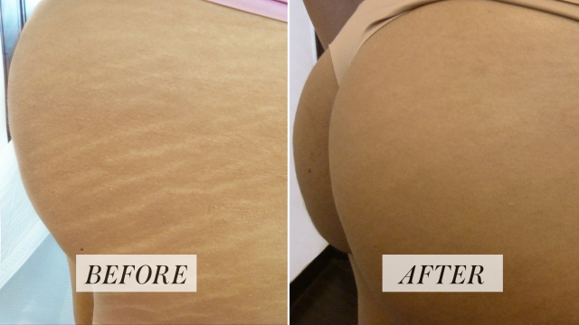 Stretch mark reduction with tattoo treatment hertfordshire