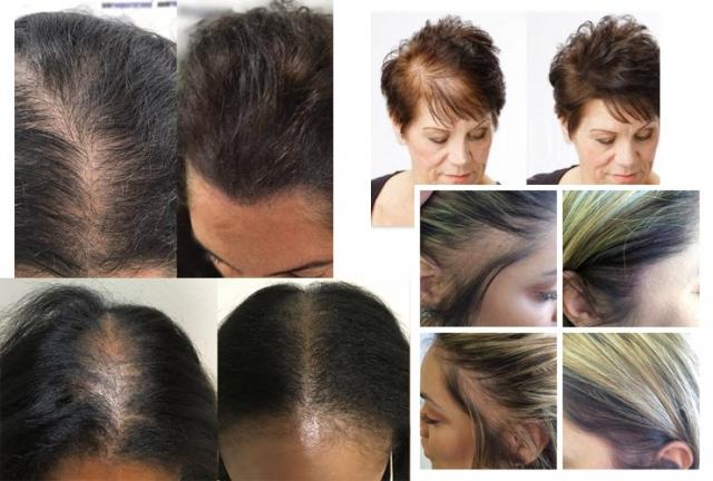 women hair loss treatment SMP