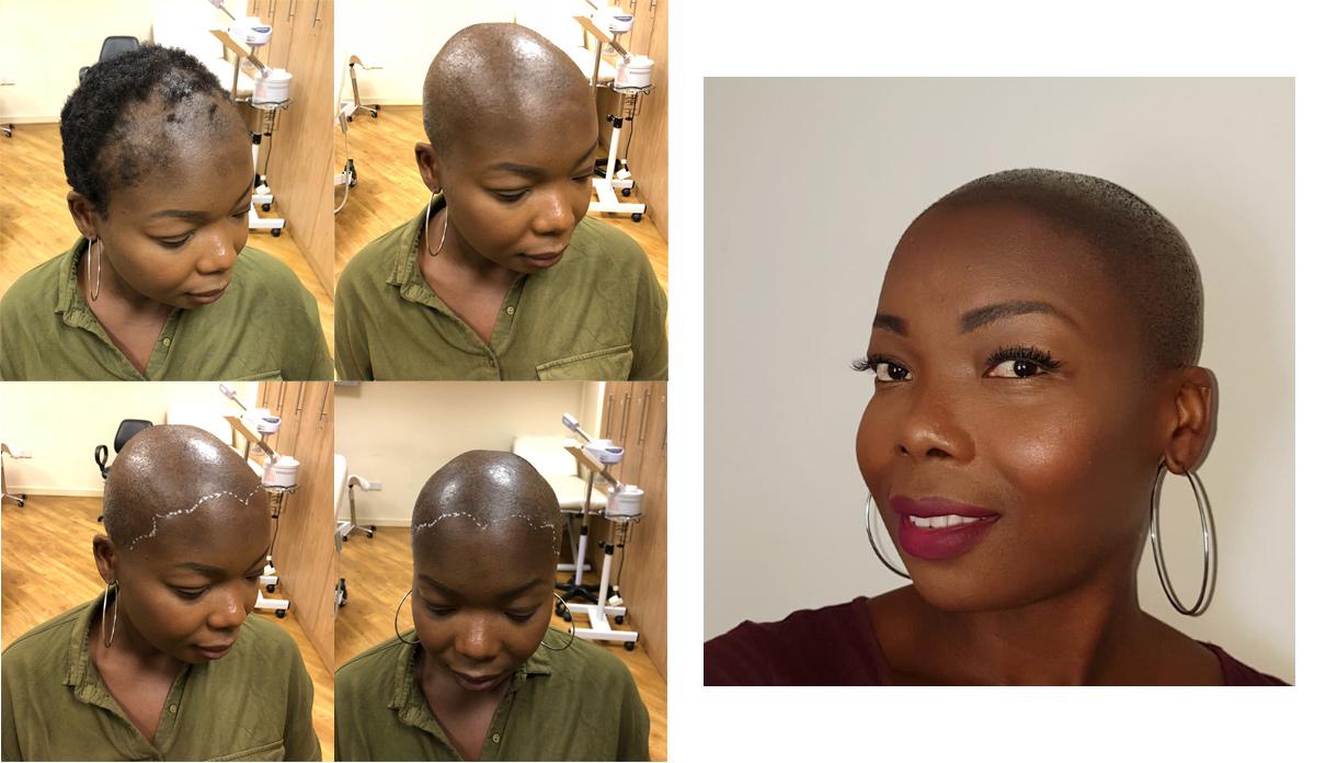 afy black woman SMP scalp tattoo