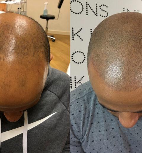 antony scalp micropigmentation london before after