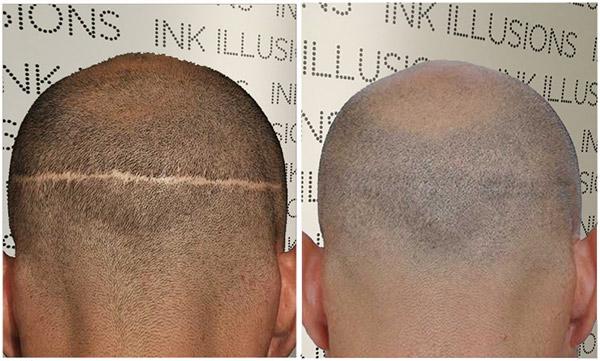scalp micropigmentation london