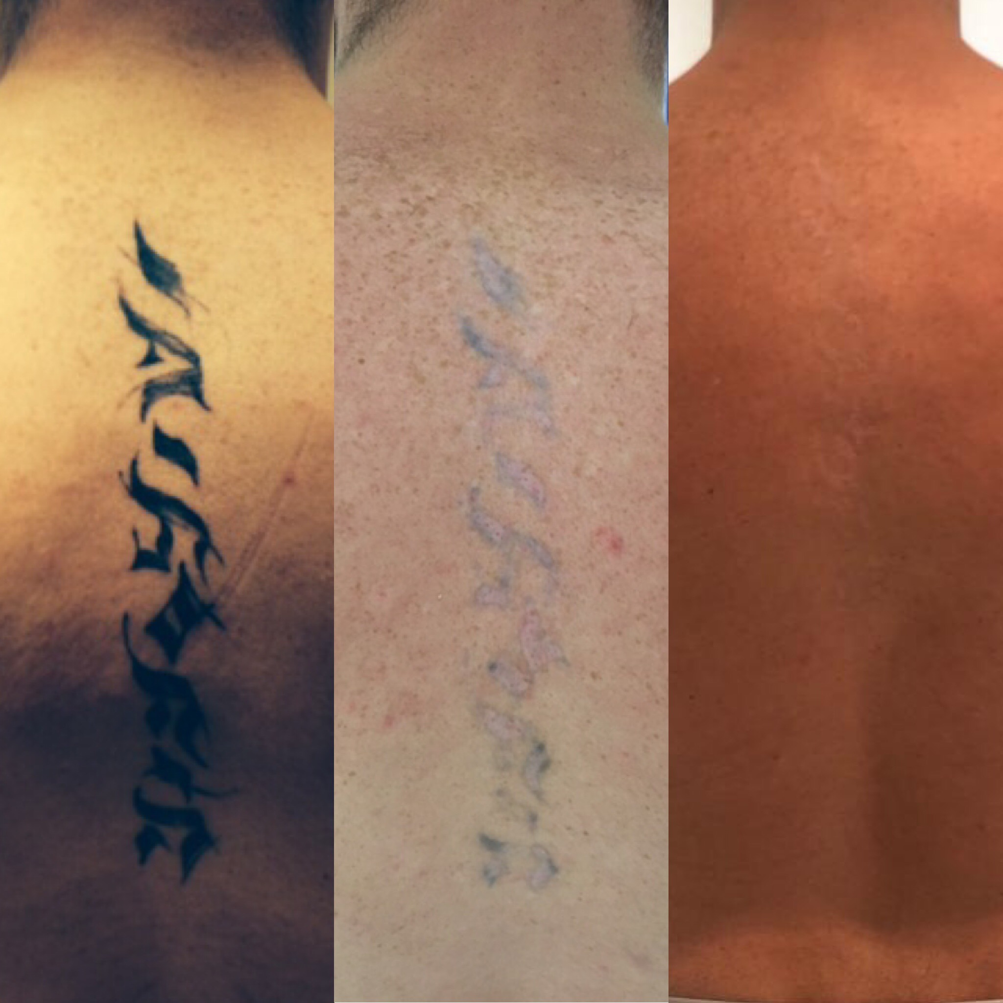 before after laser tattoo removal hertfordshire
