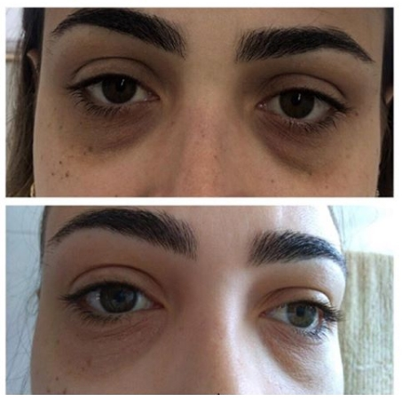 dark eye bag treatment london