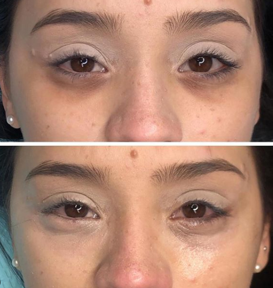 treatment for dark eye bags hertfordshire