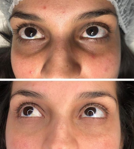 dark eye bags permanent makeup