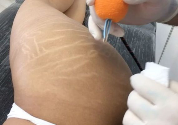 stretch marks camouflage before after
