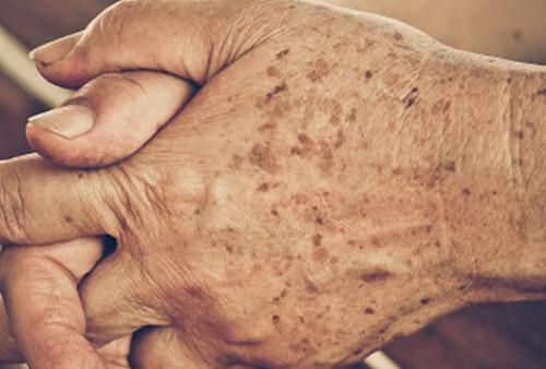 skin laser pigmentation removal