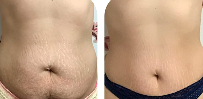 stretch mark tattoo cover up stomach