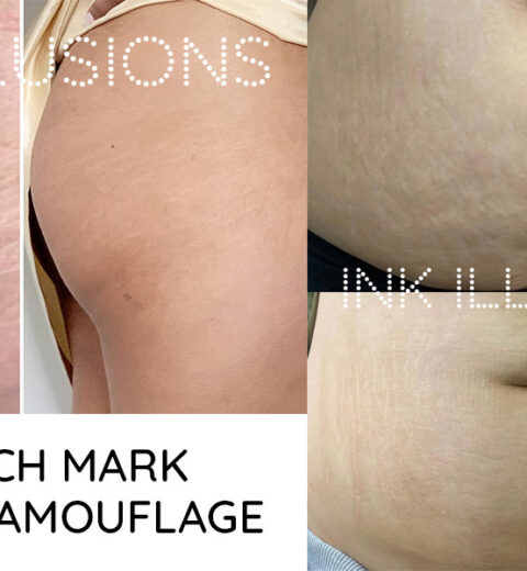 should you tattoo stretch marks