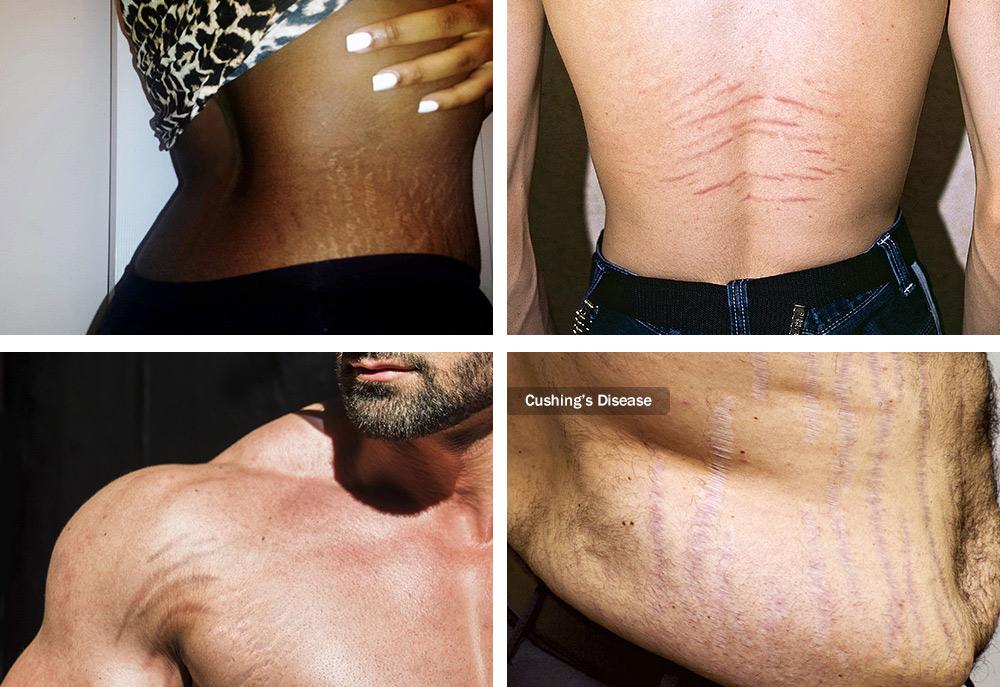 brazilian stretch mark tattoo camouflage