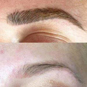 emergency eyebrow tattoo removal li-ft